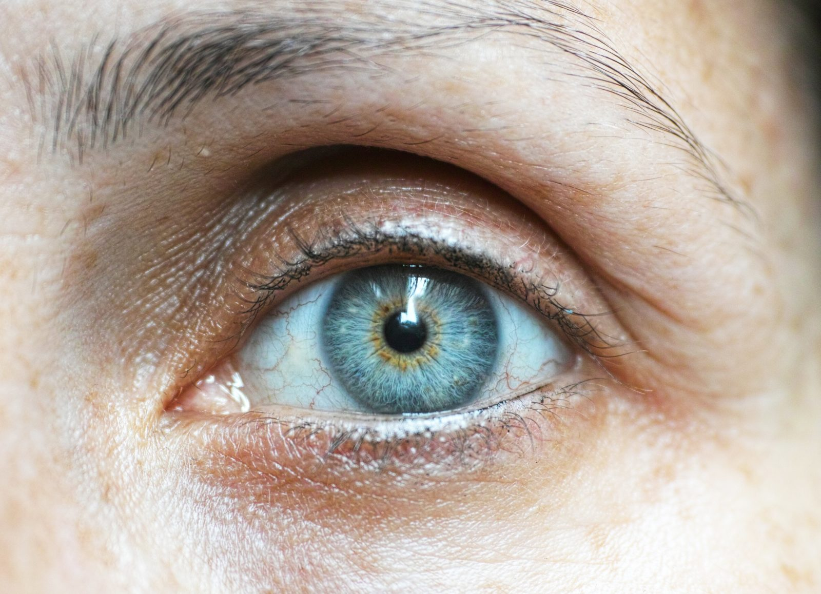 Can contact lenses scratch your eye?
